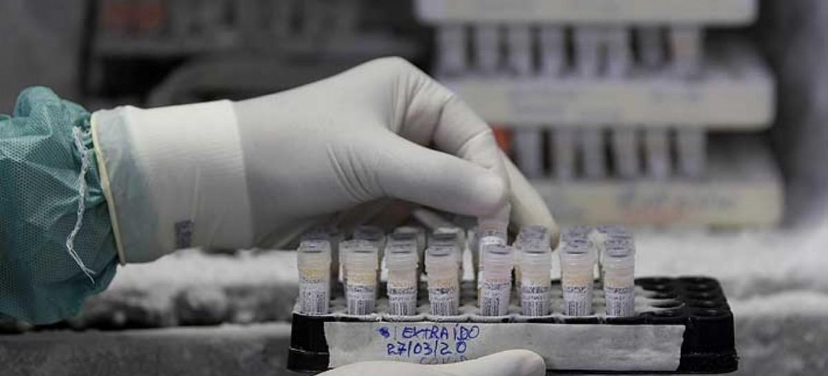 18-11-2020 // Coronavirus: el Gobierno nacional confirmó 241 muertes y 10.621 nuevos contagios