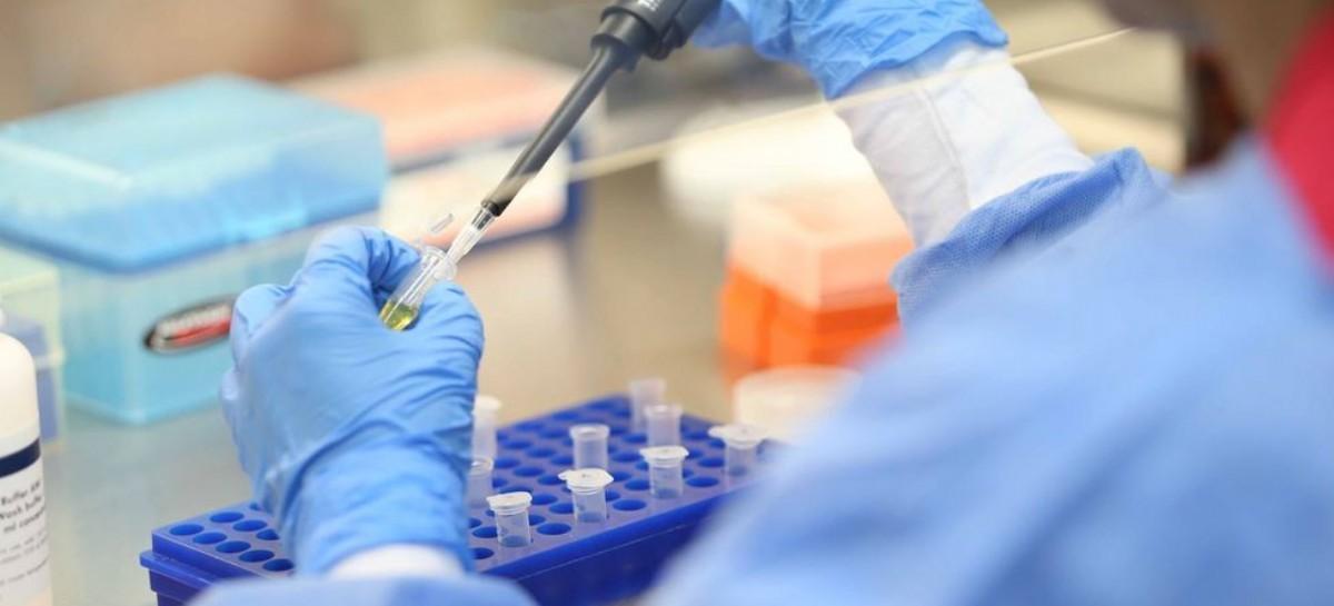 Coronavirus: el Gobierno nacional confirmó 120 muertes y 5.939 nuevos contagios en las últimas 24 hs