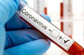 Coronavirus: el Gobierno nacional confirmó 114 muertes y 6.127 nuevos contagios en las últimas 24 hs